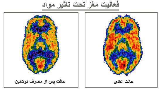 اسکن-مغز-قبل-بعد-مصرف-همراه-وب